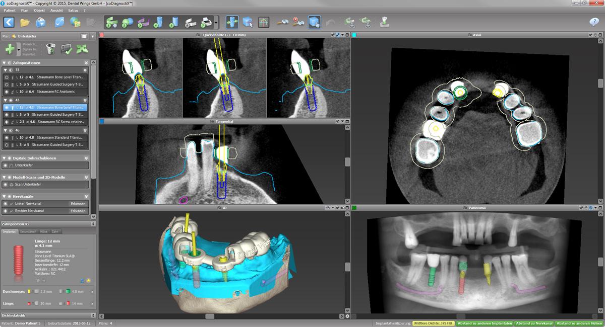 3d-implantatprothetik