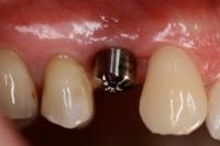 Zahnimplantate__1