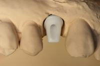 Zahnimplantate__6