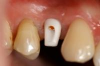 Zahnimplantate__8