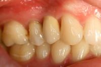 Zahnimplantate__9