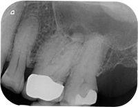 patient ohne wurzelkanalbehandlung
